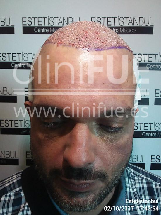 Roberto 40 Gran Canaria trasplante capilar turquia Dia Operacion
