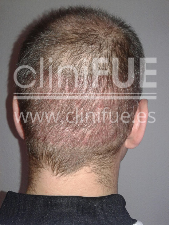 Rudy 37 Teruel trasplante capilar turquia 1 mes