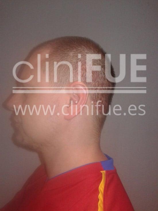 Rudy 37 Teruel trasplante capilar turquia 15 dias