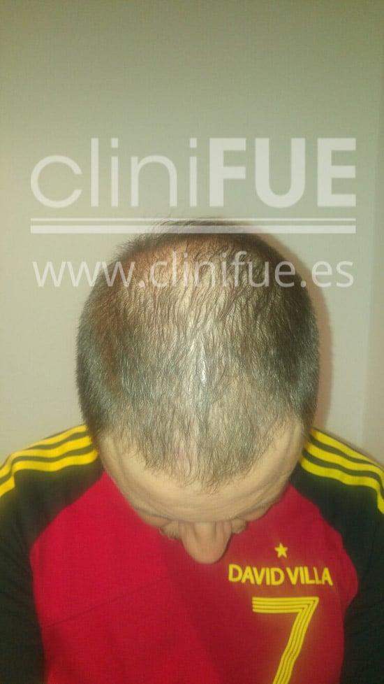 Rudy 37 Teruel trasplante capilar turquia 3 meses