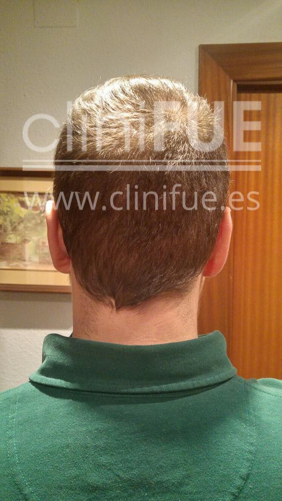 Rudy 37 Teruel trasplante capilar turquia 6 meses