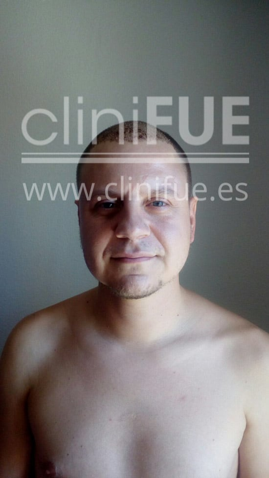 Rudy 37 Teruel trasplante capilar turquia 7 dias