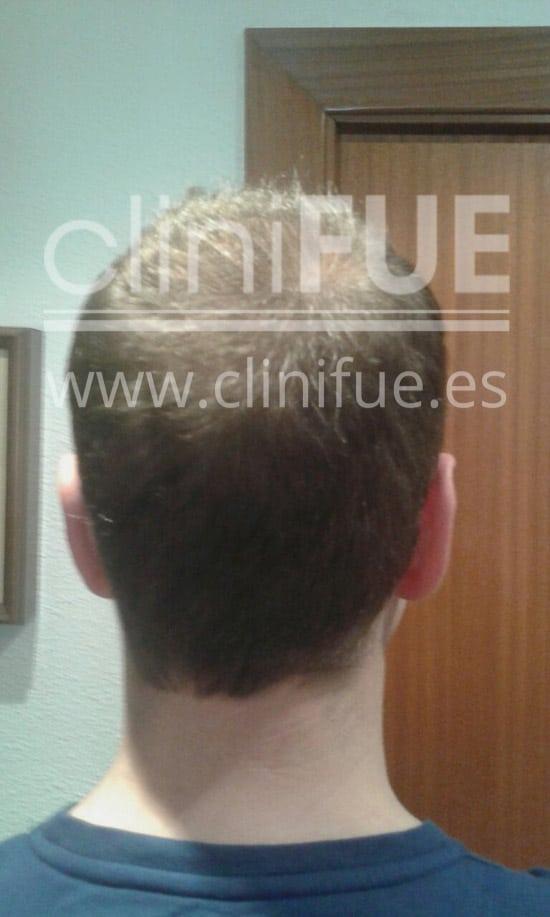 Rudy 37 Teruel trasplante capilar turquia 9 meses