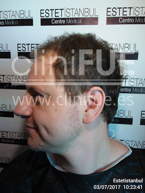 Rudy 37 Teruel trasplante capilar turquia Antes