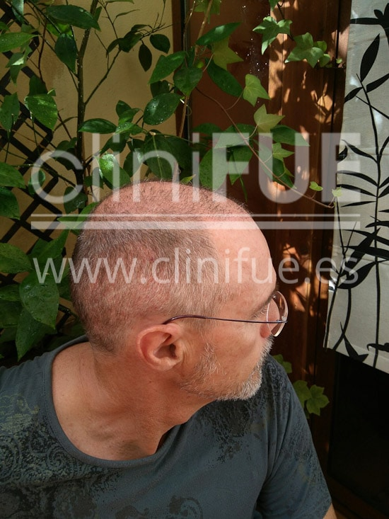 Tony 48 años Murcia injerto capilar turquia 1 mes