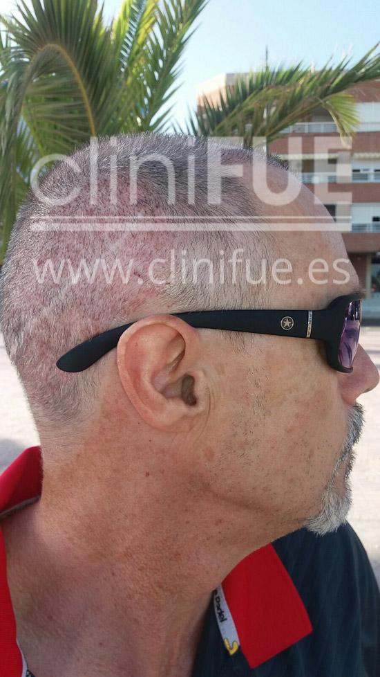 Tony 48 años Murcia injerto capilar turquia 15 dias