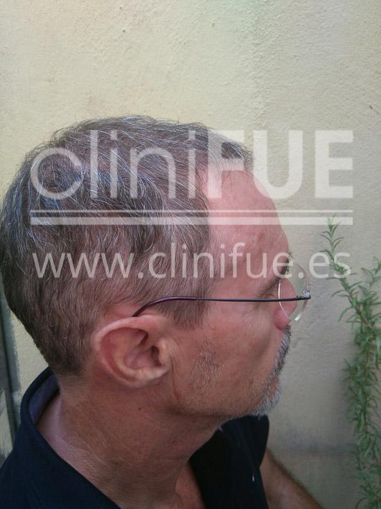 Tony 48 años Murcia injerto capilar turquia 3 meses