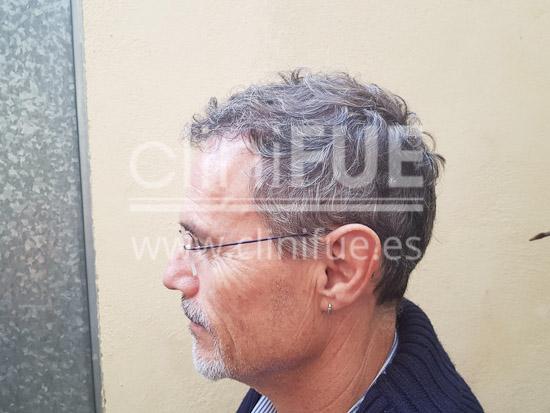 Tony 48 años Murcia injerto capilar turquia 6 meses