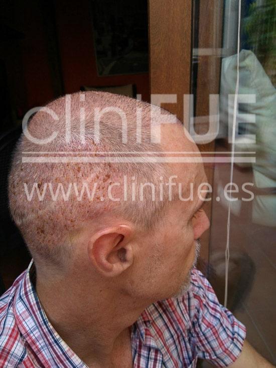 Tony 48 años Murcia injerto capilar turquia 7 dias