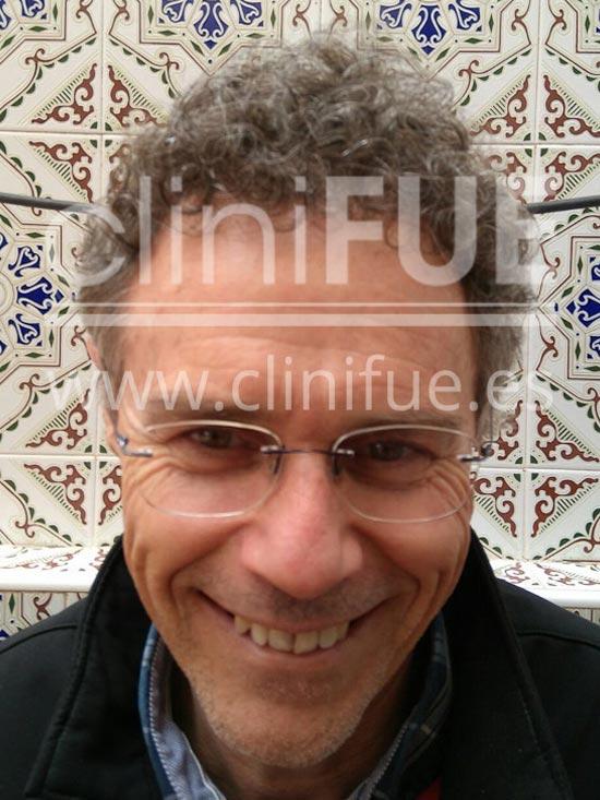 Tony 48 años Murcia injerto capilar turquia 9 meses