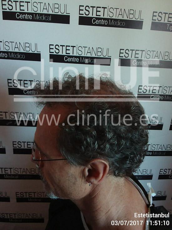 Tony 48 años Murcia injerto capilar turquia Antes