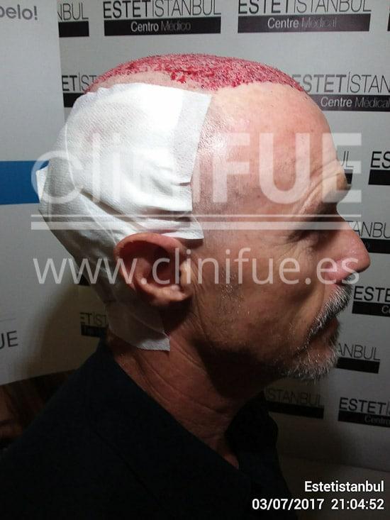 Tony 48 años Murcia injerto capilar turquia Dia Operacion