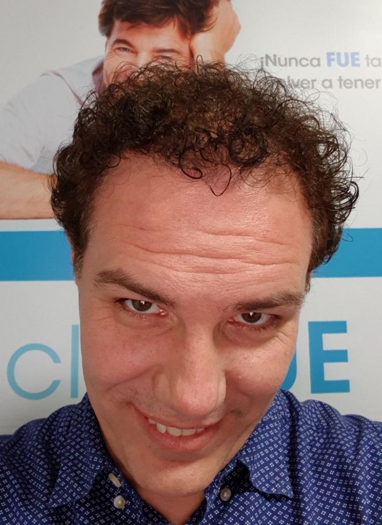 Jorge Aurelio 39 Murcia trasplante turquia 8 meses