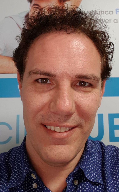 Jorge Aurelio 39 Murcia trasplante turquia 16 meses