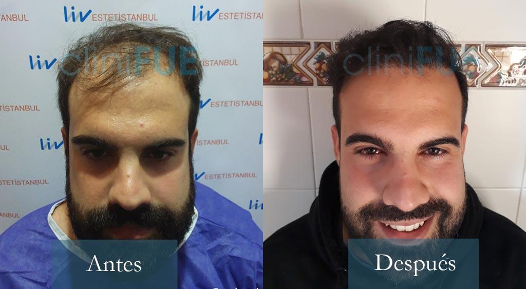 Sergio - 26 años - Alicante 4000UF trasplante de pelo