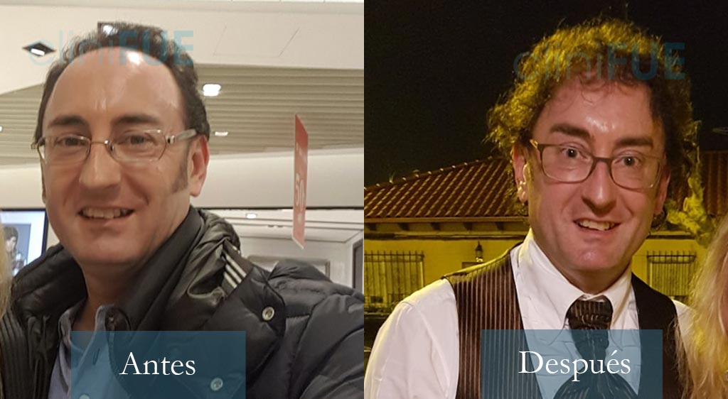 Jose Ignacio 44 años 4000 UF injerto capilar