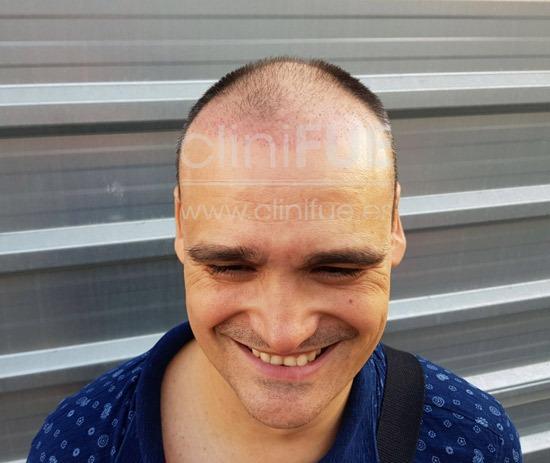 raul_injerto capilar_1 mes