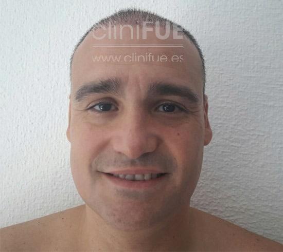 raul_injerto capilar_15 dias