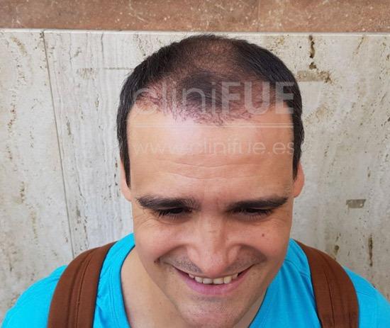 raul_injerto capilar_3 meses