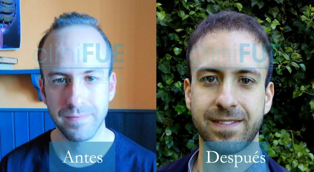 Alberto 31 Madrid 3400UF trasplante capilar