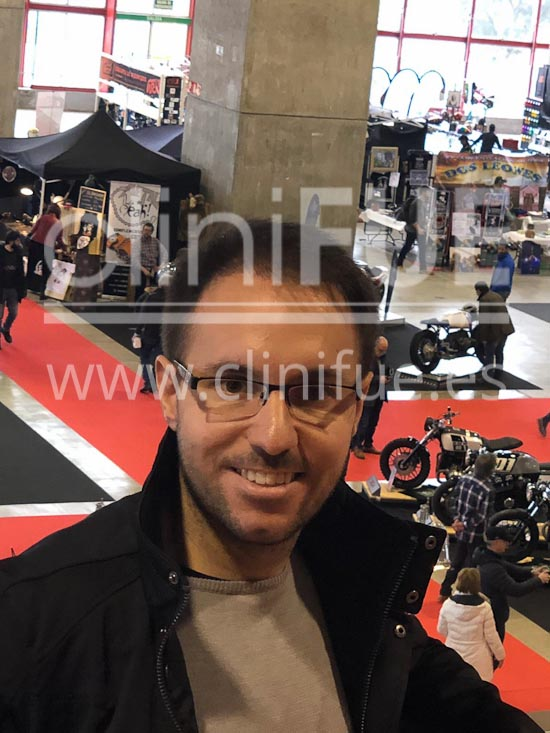 Carlos 30 años Madrid trasplante capilar turquia 12 meses