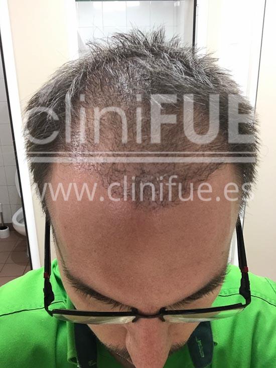 Carlos 30 años Madrid trasplante capilar turquia 4 meses