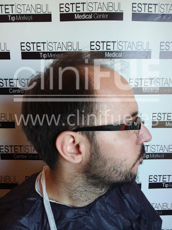 Carlos 30 años Madrid trasplante capilar turquia Antes