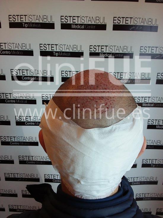 Carlos 30 años Madrid trasplante capilar turquia Dia Operacion