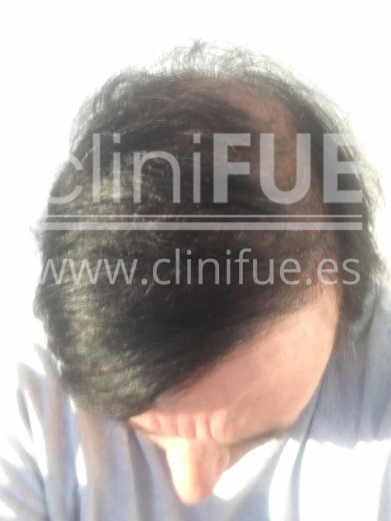 Carlos 56 Madrid trasplante capilar turquia 12 meses
