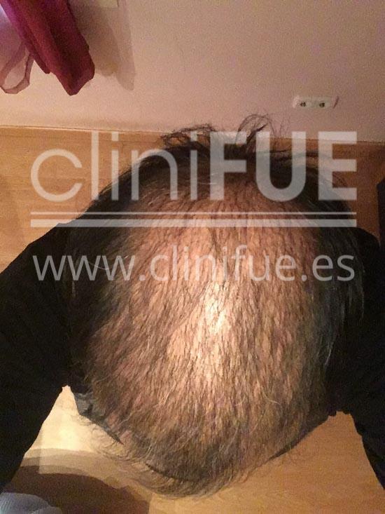 Carlos 56 Madrid trasplante capilar turquia 4 meses