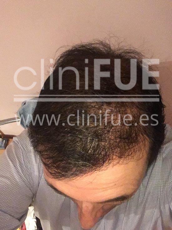 Carlos 56 Madrid trasplante capilar turquia 6 meses