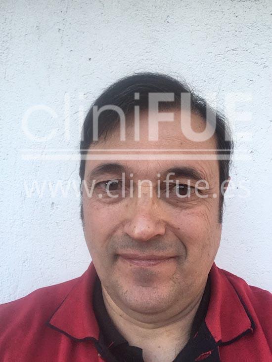 Carlos 56 Madrid trasplante capilar turquia 9 meses