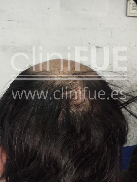 Carlos 56 Madrid trasplante capilar turquia Antes