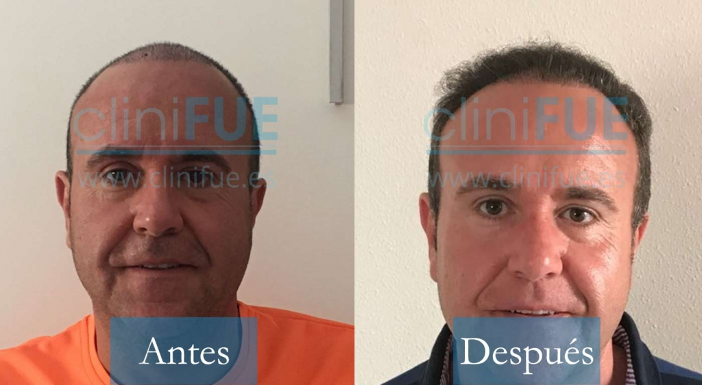 Cristobal 45 Almeria_ antes y despues trasplante capilar cliniFUE