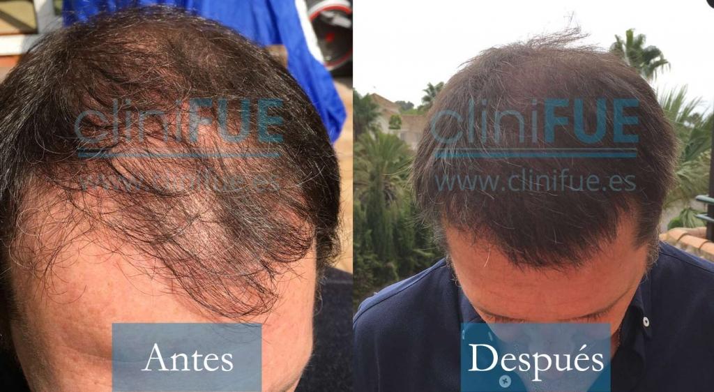 Cristóbal Cavero - 43 años - Bilbao 3800 UF trasplante de pelo