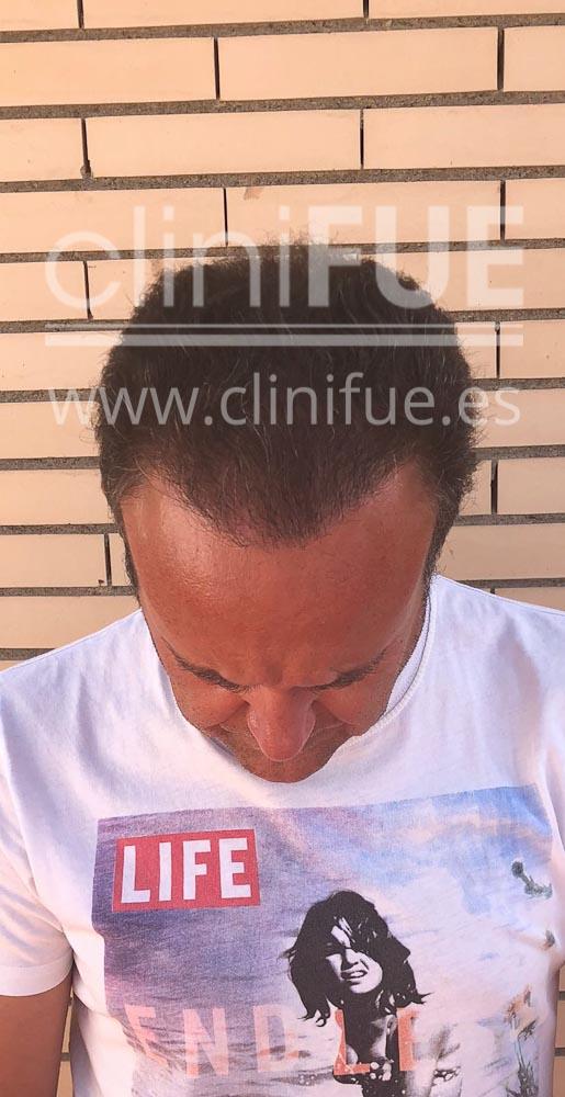 Cristobal trasplante pelo 12 meses cliniFUE