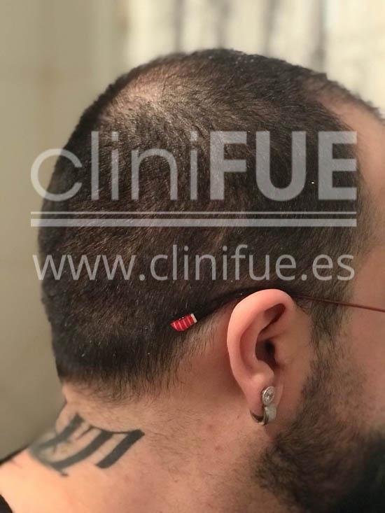 Fernando 33 Palencia injerto capilar turquia 3 meses