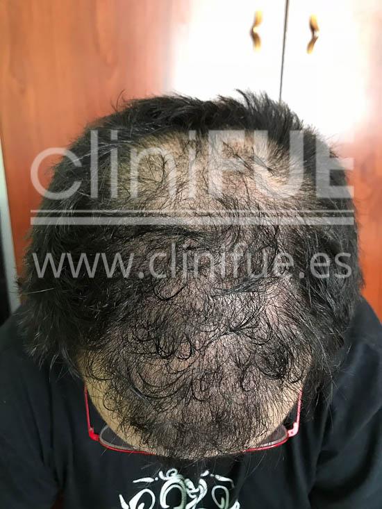 Fernando 33 Palencia injerto capilar turquia 6 meses