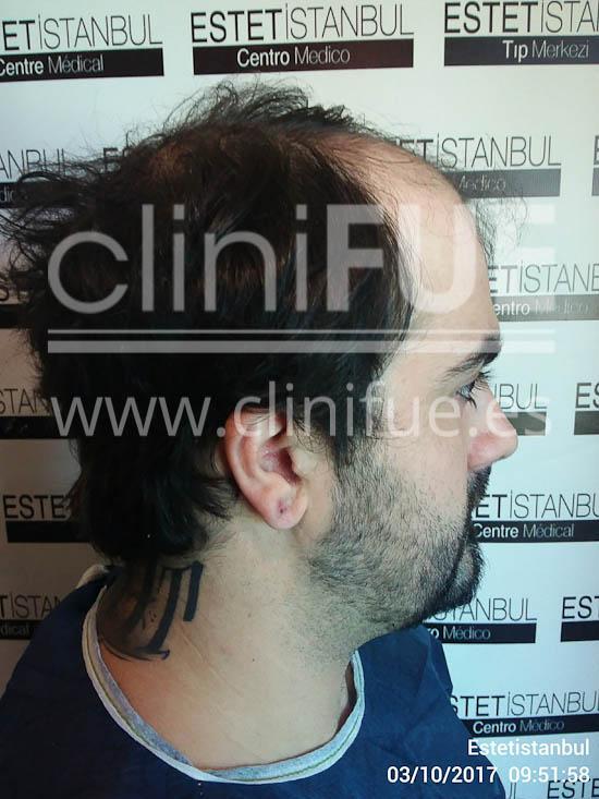 Fernando 33 Palencia injerto capilar turquia Antes