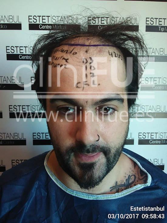 Fernando 33 Palencia injerto capilar turquia Dia Operacion