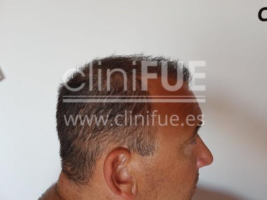 fernando 46 Malaga trasplante capilar_12 meses
