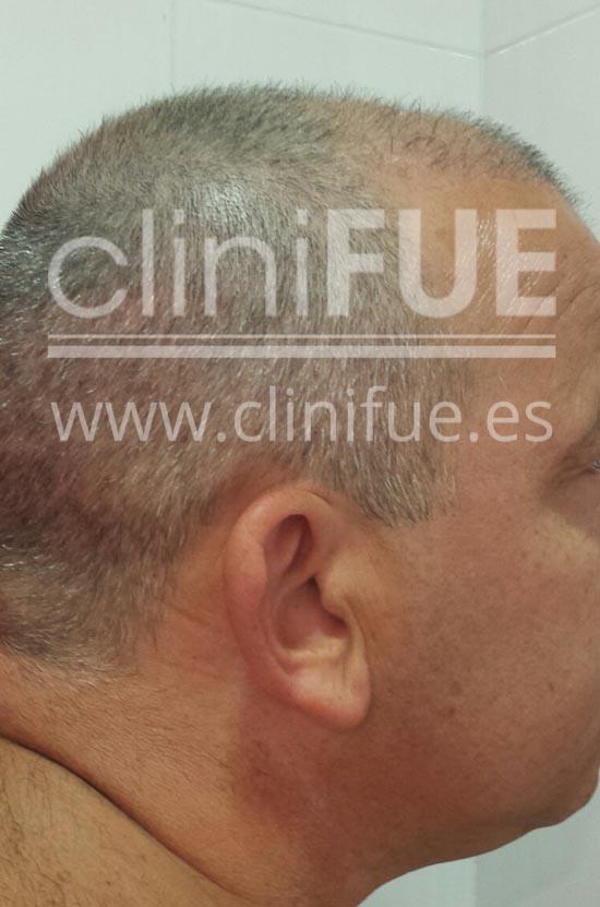fernando 46 Malaga trasplante capilar_3 meses