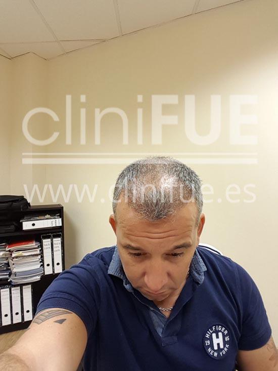 fernando 46 Malaga trasplante capilar_6 meses