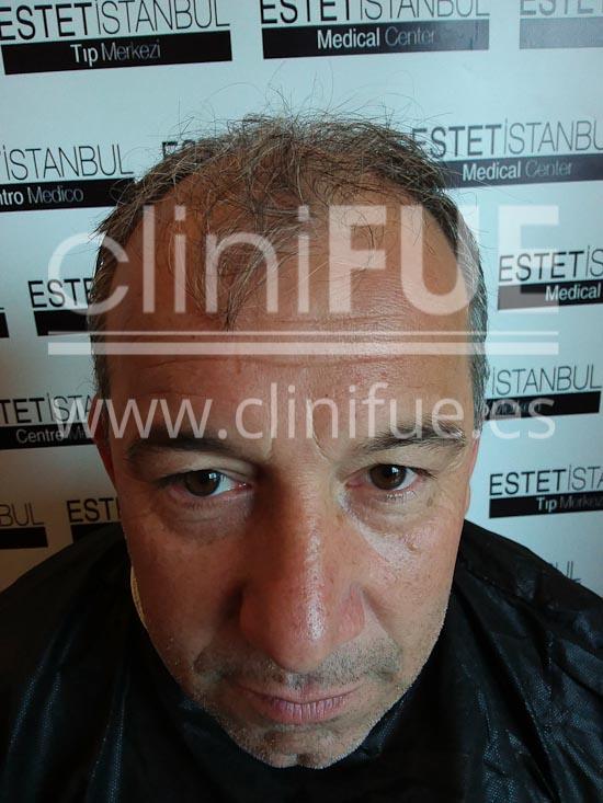 fernando 46 Malaga trasplante capilar_antes
