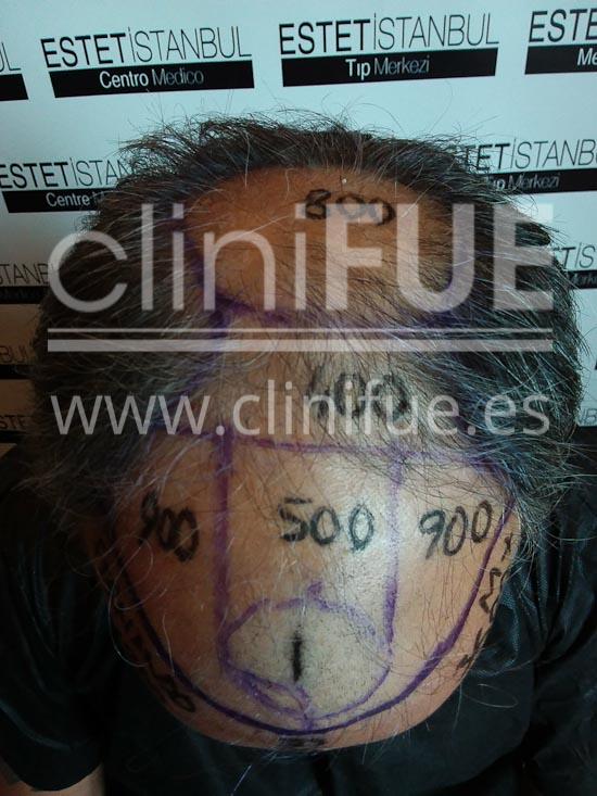 fernando 46 Malaga trasplante capilar_dia operacion