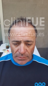 Francisco 45 _injerto capilar _3 meses