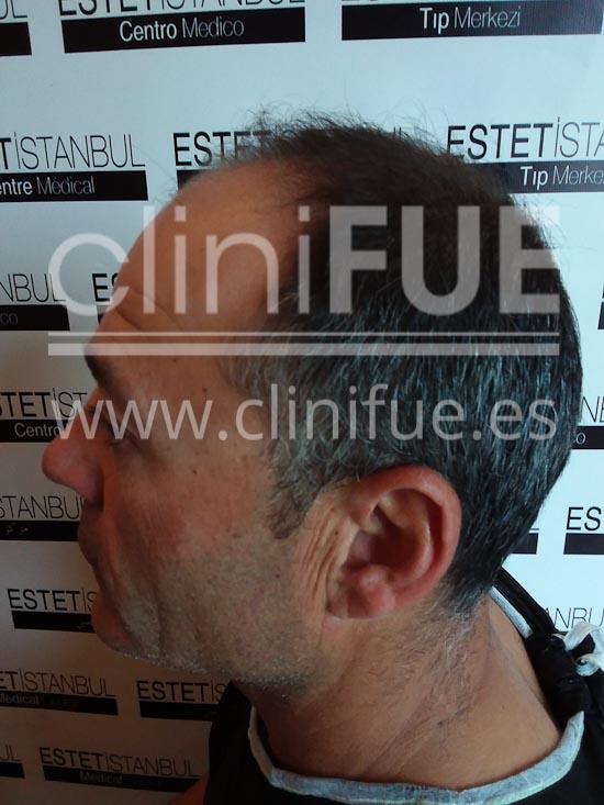 Francisco 45 _injerto capilar Antes