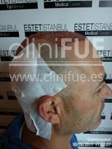 Francisco 45 _injerto capilar Dia Operacion