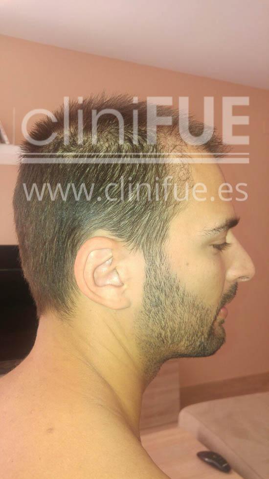guillermo 26 Murcia trasplante capilar turquia 2 meses