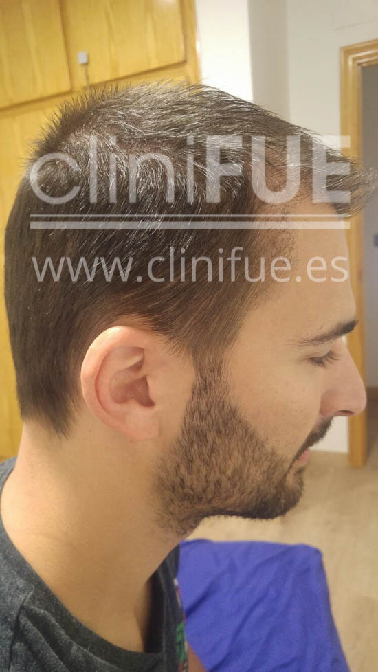 guillermo 26 Murcia trasplante capilar turquia 3 meses